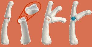Finger-Gelenkdefekt